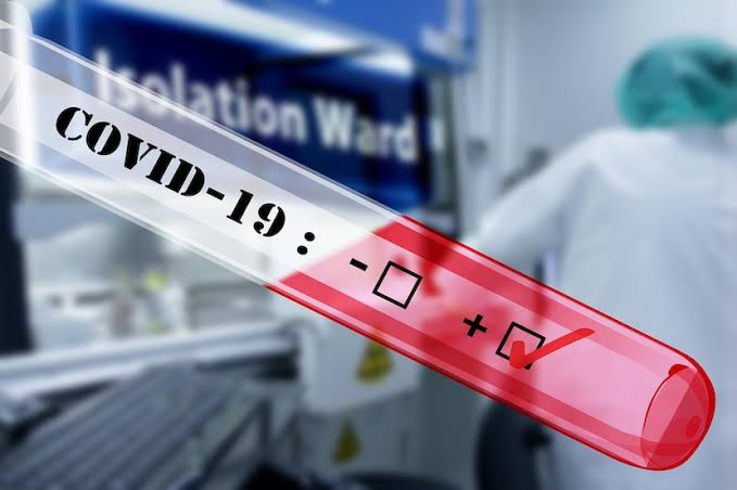 NICD reports over 17K new Covid-19 cases